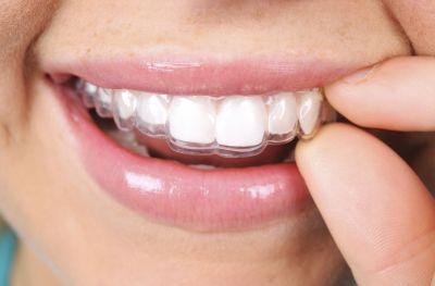 Foto: Unsichtbare Zahnspange