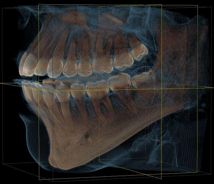 Foto: Oralchirurgie