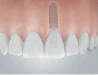 Grafik: Implantatversorgung zum Ersatz eines mittleren Schneidezahns