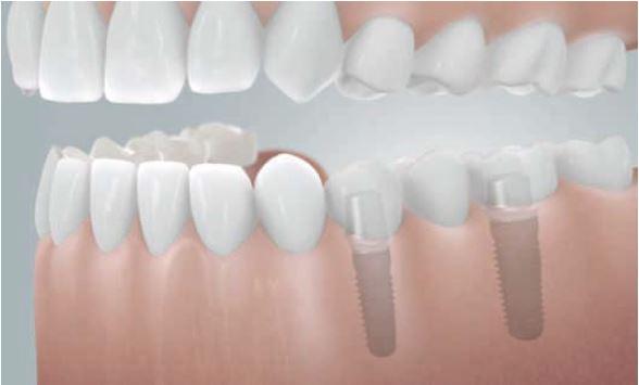Grafik: Brücke auf 2 Implantaten zum Schließen einer Schaltlücke mit 3 fehlenden Zähnen