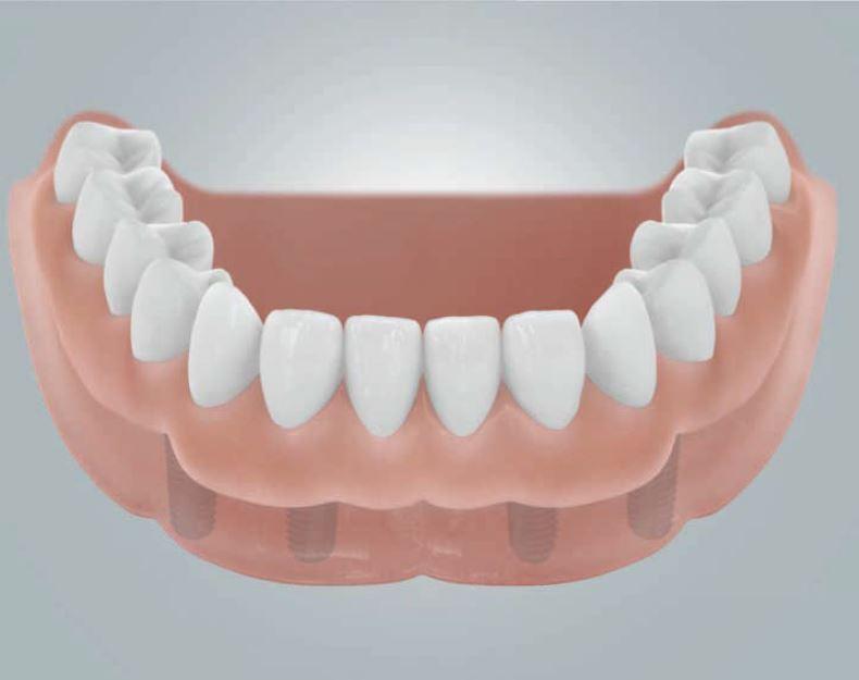 Wiederherstellung der ganzen Zahnreihe am Beispiel des Unterkiefers. Der herausnehmbare Zahnersatz findet durch die Implantate festen Halt