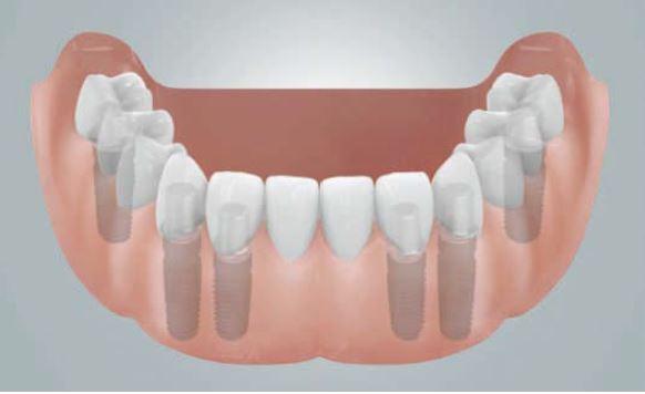 Grafik: Festsitzende Brücken auf 6 Implantaten zum Ersatz der ganzen Zahnreihe im UK