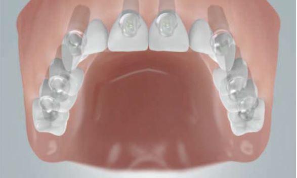 Grafik: Festsitzende Brücke auf 8 Implantaten zum Ersatz der ganzen Zahnreihe im OK